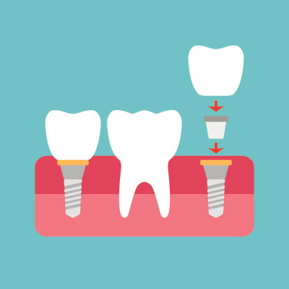 What Does a Dental Implant Procedure Look Like? | Dorothy Paul, DDS